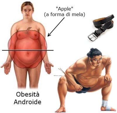 Obesità centrale