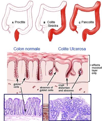 pancreatite acuta terapia medica