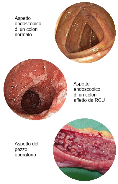 RCU, Aspetti macroscopici