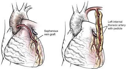 Innesto vena safena o arteria mammaria