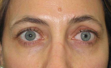Il pacco di faccia che si restringe ha allargato pori