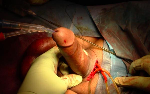 erezione penetrazione