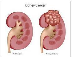 tumori urogenitali