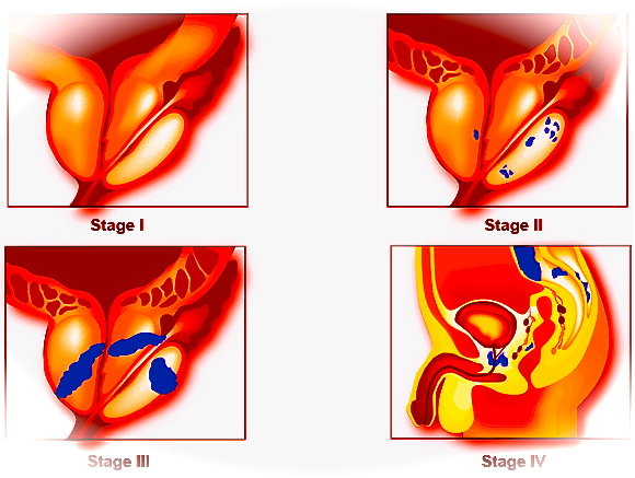 giovanniberetta_Prostate-Cancer-Stages-3
