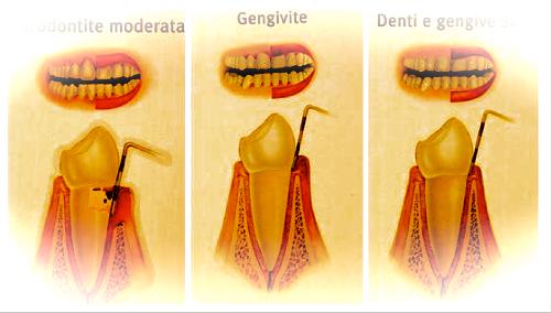 Patologie odontoiatriche comuni