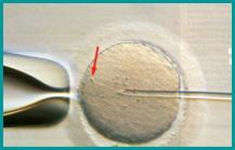Iniezione intracitoplasmatica degli spermatozoii