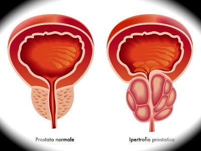 Prostata normale ed ipertrofica