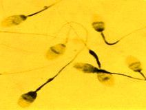 Spermatozoi
