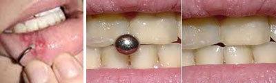 Piercing labbra