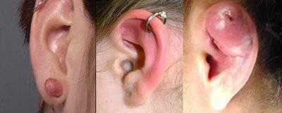 piercing orecchio cheloidi
