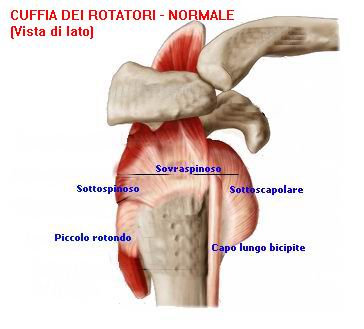 """Le """"lesioni massive della cuffia dei rotatori"""" sono definite anche  """"irreparabili"""" ed appartengo all ultimo stadio della classificazione sulle  lesioni della ... 8e8c5ad8ac86"""