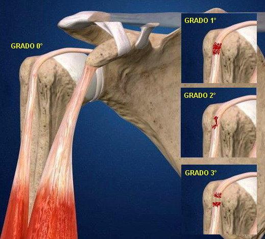 La patologia del capo lungo del bicipite  d682c1325510