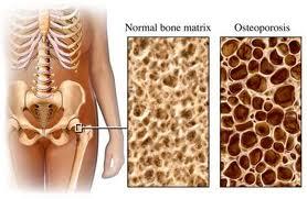 luigigrosso_osteoporosi