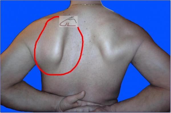 Sanguisughe su reparto cervicale di una spina dorsale