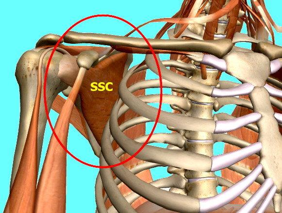 La lesione del tendine sottoscapolare  5148f5e4995c