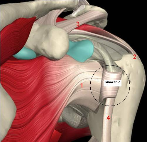Condromatosi sinoviale di spalla  una non rara causa di spalla dolorosa  6b70ba710c47