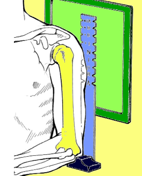 luigigrosso_spalla_protesi