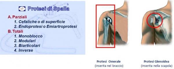 luigigrosso_spallaprotesi-qs2