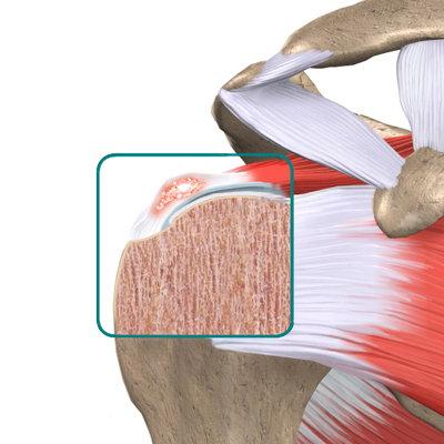 La tendinite calcifica della spalla  43b64753a5bb