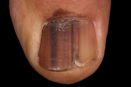 Melanoma sotto unghia alluce