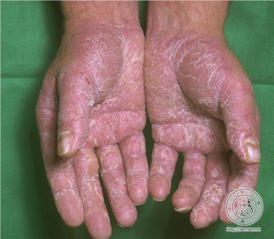 Psoriasi palmo plantare: particolare delle mani