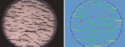 tricologia dott laino tricogramma