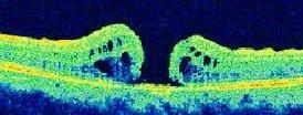 vitreo maculare pre-esistente VMT)