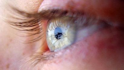 Lente a contatto con occhio secco