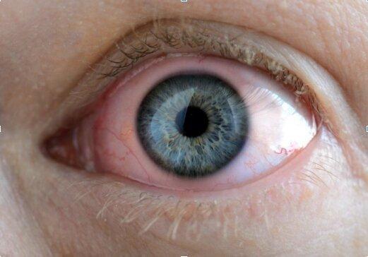 Secchezza oculare e lenti