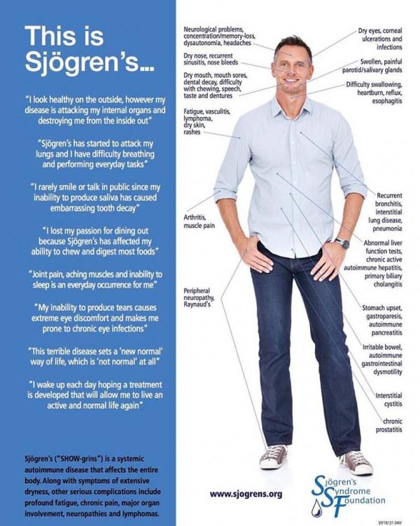 Sindrome di Sjögren sull'uomo