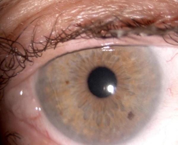 Rosacea e secchezza oculare