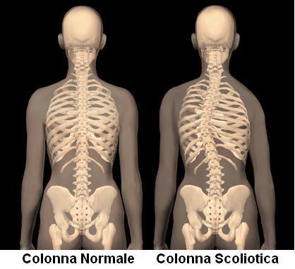 Differenza tra colonna vertebrale normale e scoliotica.