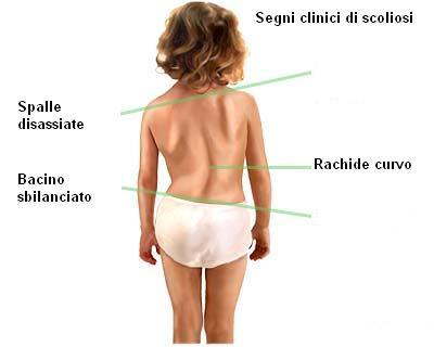Segni clinici di scoliosi.