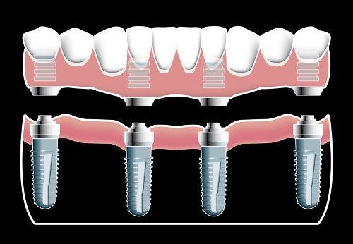 implantologia quattro punti di ancoraggio per arcata