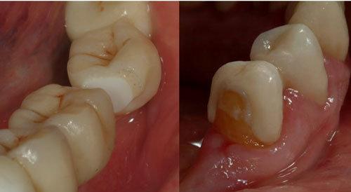 Fratture ponte dentale