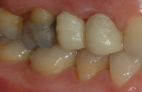 ponte dentale a tre elementi