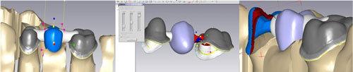 Progettazione dentale CAD