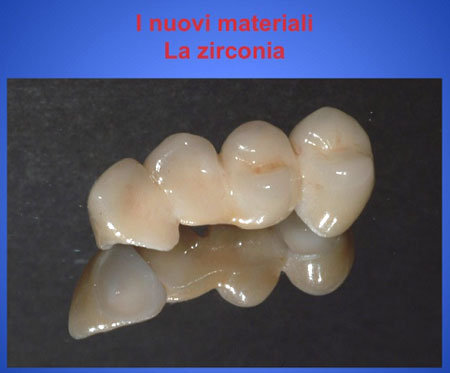 Denti in zierconia