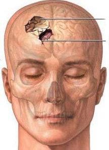 Frattura cranica comminuta