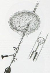 Ureteroscopia semirigida per calcolo ureterale