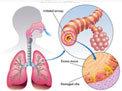 Tutto sulla BPCO Broncopneumopatia Cronica Ostruttiva