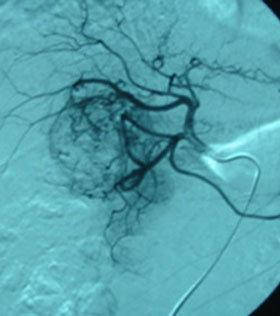 Catererismo selettivo dell'arteria epatica