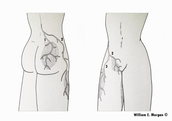 Dolore di torace nel mezzo e in un trattamento posteriore
