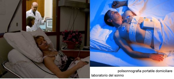 polisonnografia