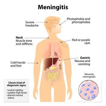 Sintomi-Meningite