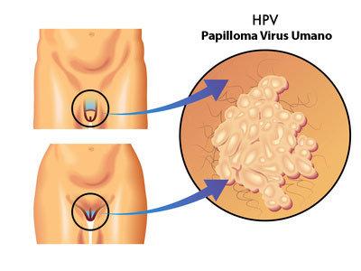 Papilloma virus: arriva in Italia il vaccino 9-valente