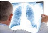Tutto sulla diagnosi di asma