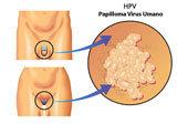 Tutto sull'HPV