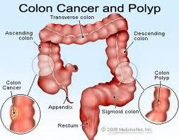Cancro al colon