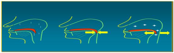 La CPAP evita il collabimento dei pilastri retrofaringei